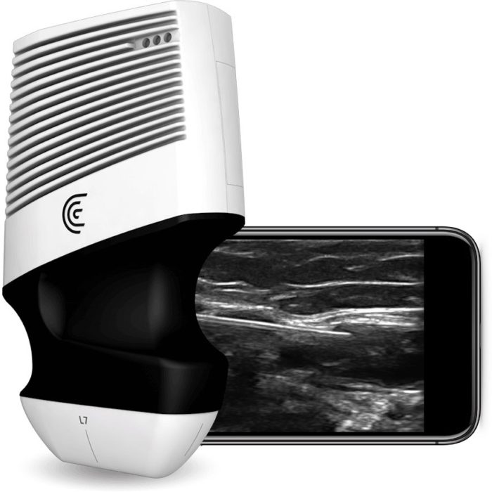 Ecograf doppler wireless